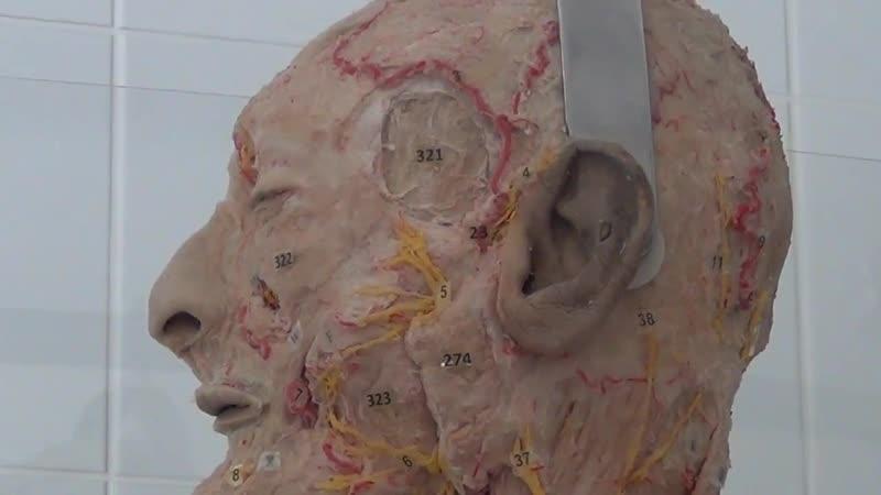 Тройничный нерв и лицевой нерв на сосудисто нервном препарате проф В А Изранов